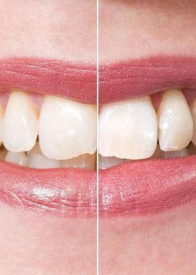 Vorher-, Nacherunterschied der Professionellen Zahnreinung